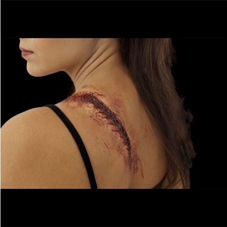 Cicatrice sanglante recousue